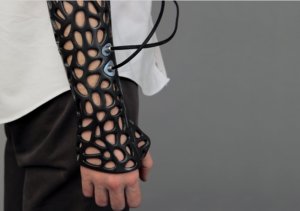 Osteoid 3D pRINTED Cast